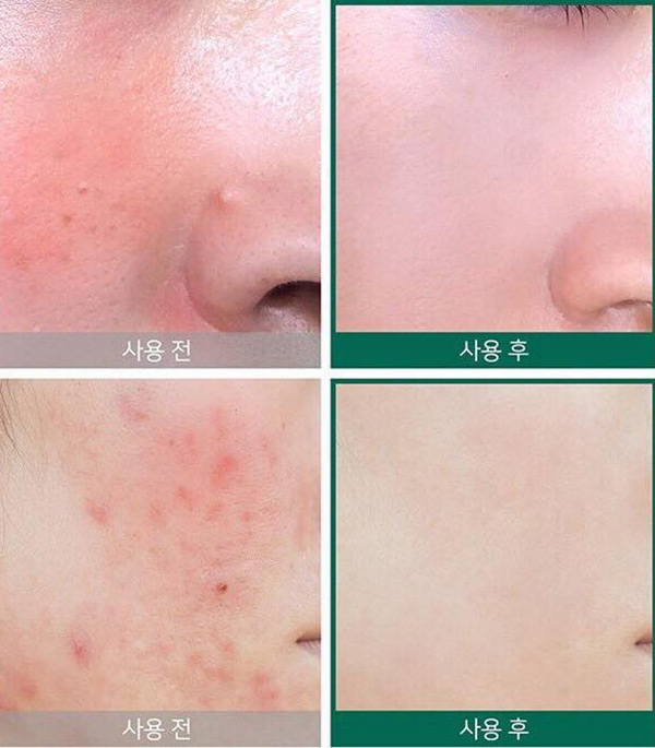 Kem Trị Mụn Thâm Some By Mi AHA BHA PHA 30 Days Miracle Cream
